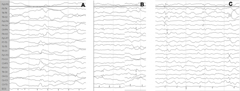 Figure 1: Evolution of the EEG pattern at 3, 4 and 5 months of age (a, b, c), which shows the tendency of epileptiform abnormalities to become multifocal.